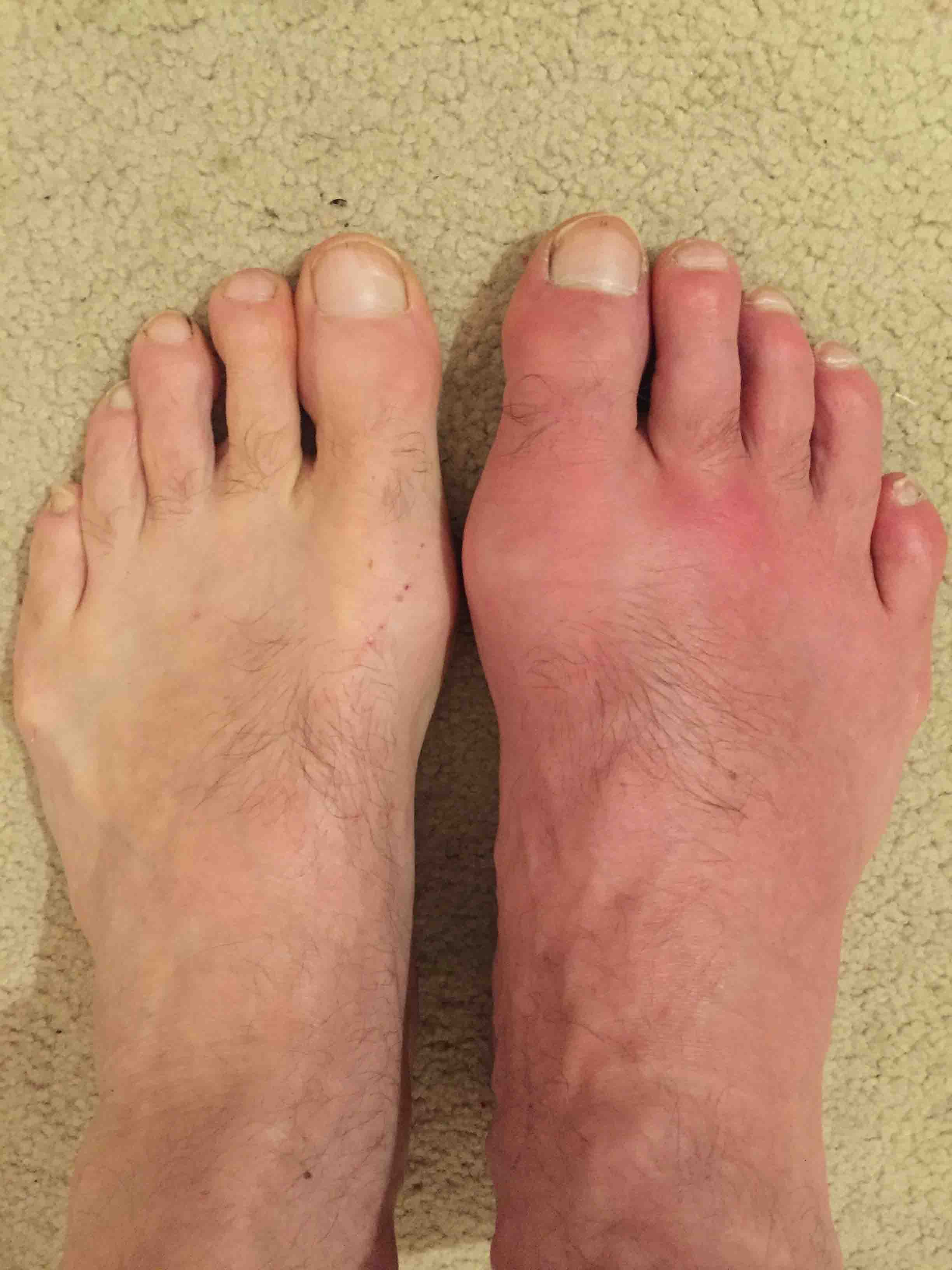 images of gout