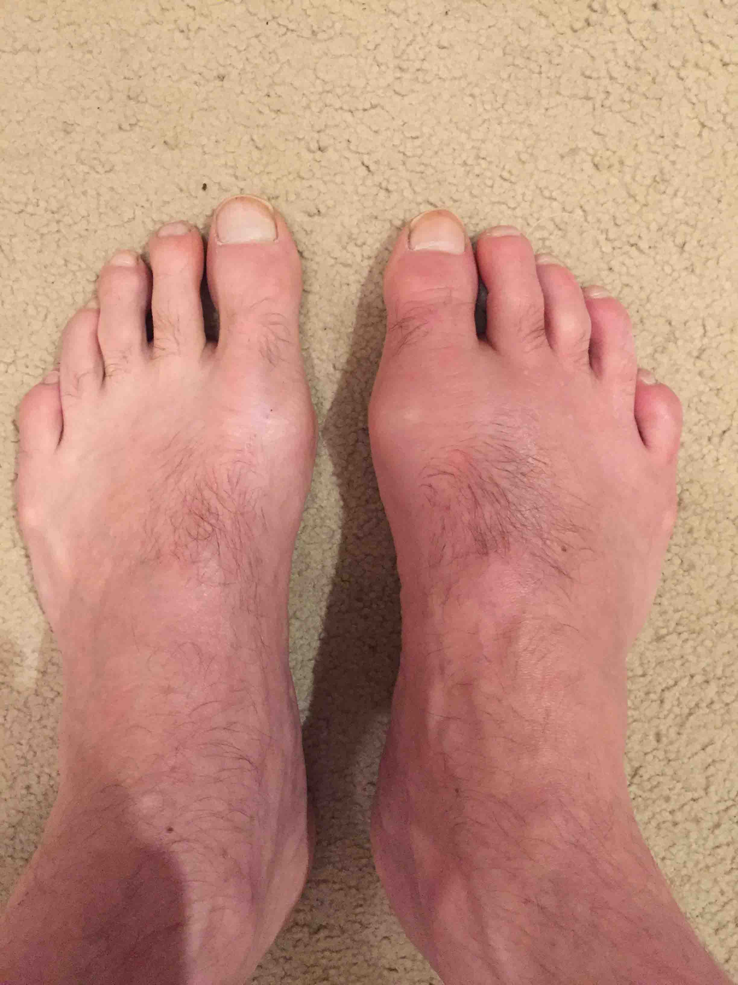gout diet patient uk how to reduce high uric acid naturally