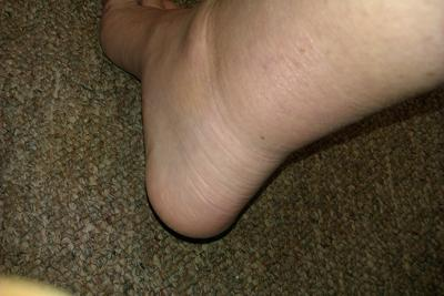 Gout Ankle
